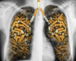 Resultado de imagem para Cigarro: abandone a morte mais evitável do mundo